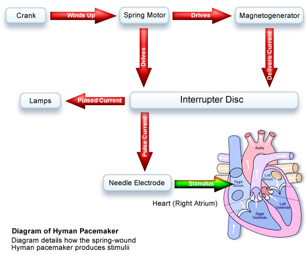 ImageForArticle_10(1) a history of pacemakers