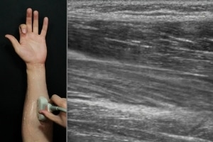 Future Wearable Devices Could Use Ultrasound Imaging to Sense Hand Gestures